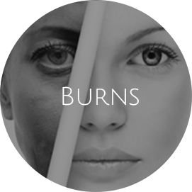 Burns Reconstruction